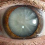 Ce este si cum se poate manifesta cataracta?